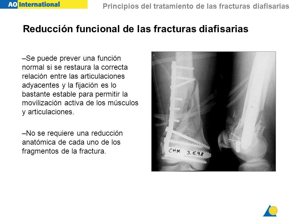 Principios del tratamiento de las fracturas diafisarias Reducción funcional de las fracturas diafisarias –Se puede prever una función normal si se res