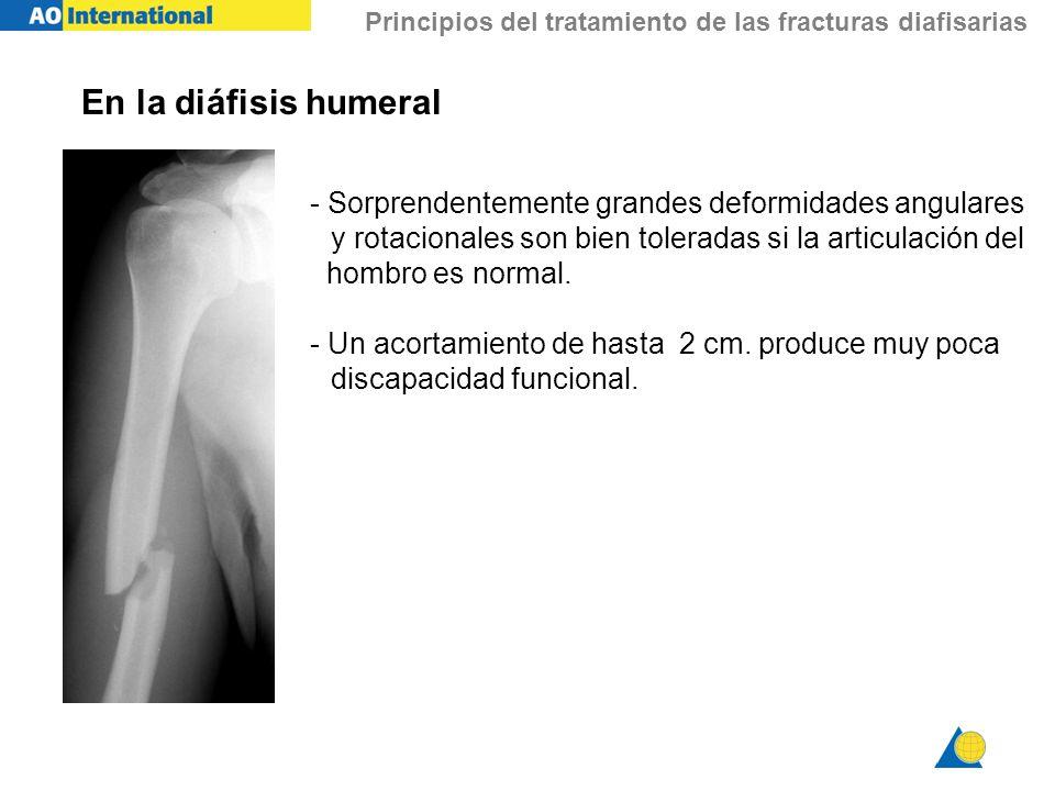 Principios del tratamiento de las fracturas diafisarias En la diáfisis humeral - Sorprendentemente grandes deformidades angulares y rotacionales son b