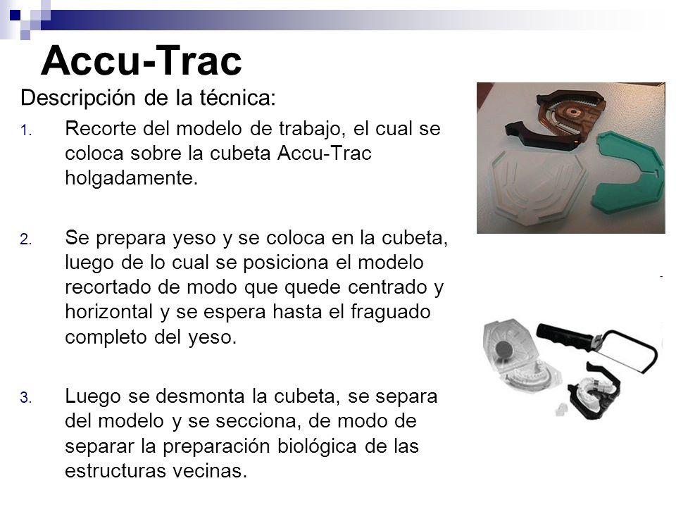 Descripción de la técnica: 1. Recorte del modelo de trabajo, el cual se coloca sobre la cubeta Accu-Trac holgadamente. 2. Se prepara yeso y se coloca
