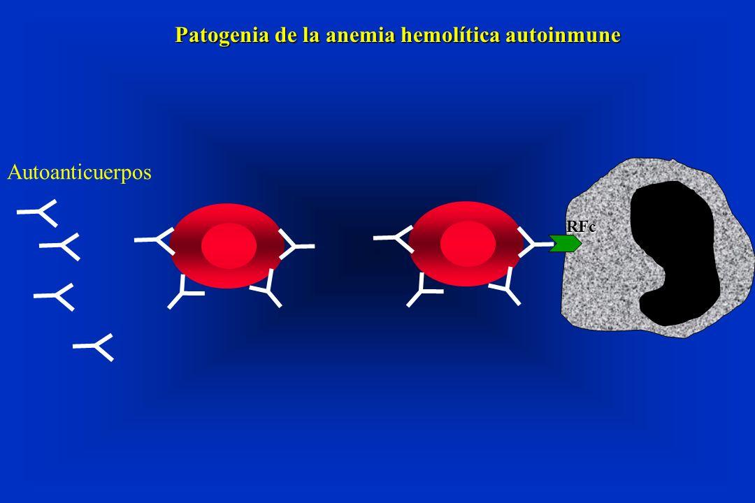 Autoanticuerpos RFc Patogenia de la anemia hemolítica autoinmune
