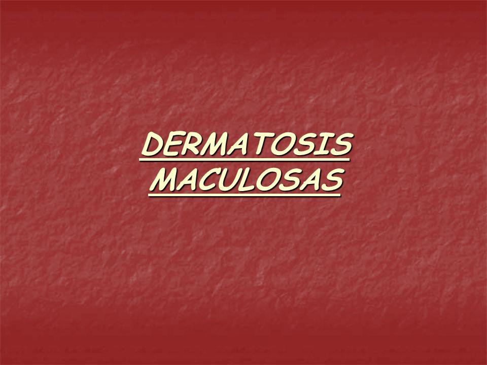 MACULA Modificación del color de la piel que no altera la consistencia, espesor ni produce relieve.