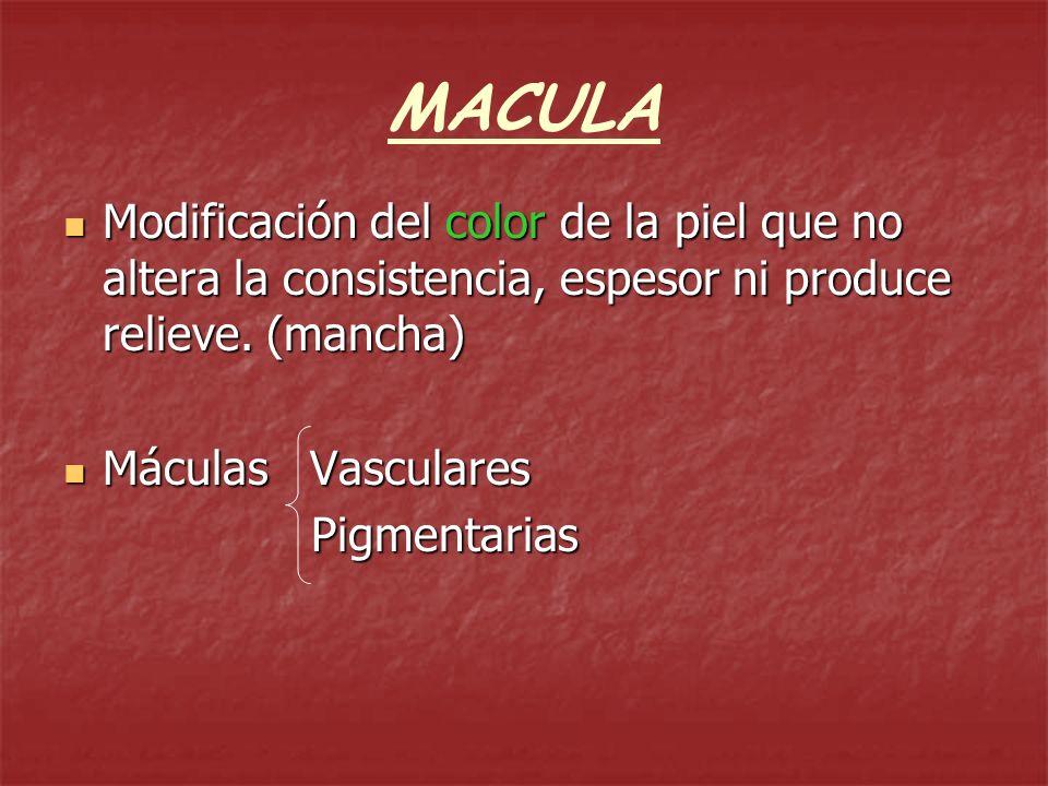 MACULAS VASCULARES Diferentes colores de origen vascular ERITEMA: cong.
