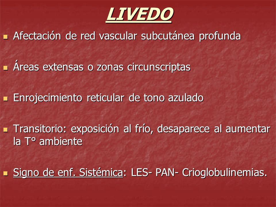 MACULAS DISCROMICAS HIPOPIGMENTADAS VITILIGO Anomalía pigmentaria crónica Frecuente Desaparición de melanocitos de epidermis