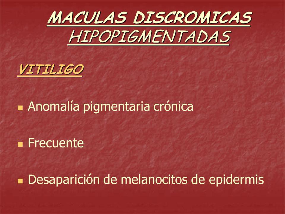 VITILIGO Investigar trastornos nerviosos, focos sépticos y endocrinopatías Investigar trastornos nerviosos, focos sépticos y endocrinopatías CLINICA: -máculas hipopigmentadas de progresión variable CLINICA: -máculas hipopigmentadas de progresión variable -mm a cm, redondas u ovales -mm a cm, redondas u ovales -color blanco tiza -color blanco tiza -bordes festoneados -bordes festoneados -sin: prurito, alter.