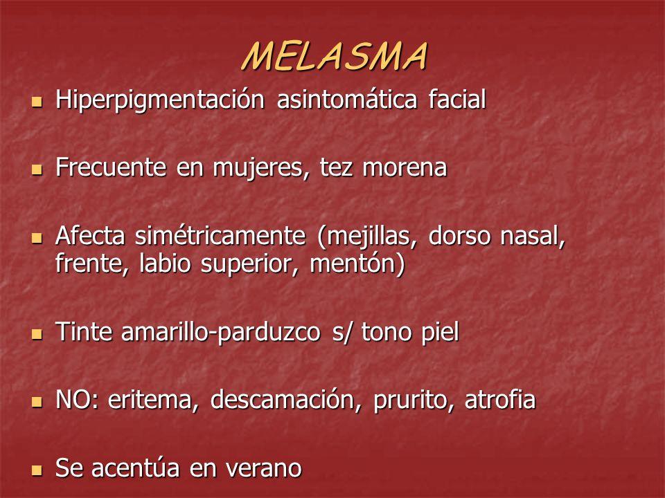 MELASMA DEL EMBARAZO: Bastante frecuente Bastante frecuente Aparece hacia 2° mes y aumenta progresivamente.
