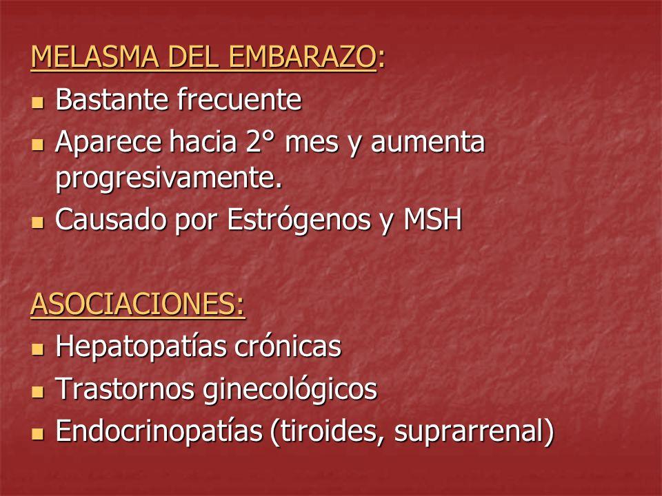 MELASMA DESENCADENANTES O GRAVANTES: Ttos.fotosensibilizantes (sulfas, hidantoínas) Ttos.