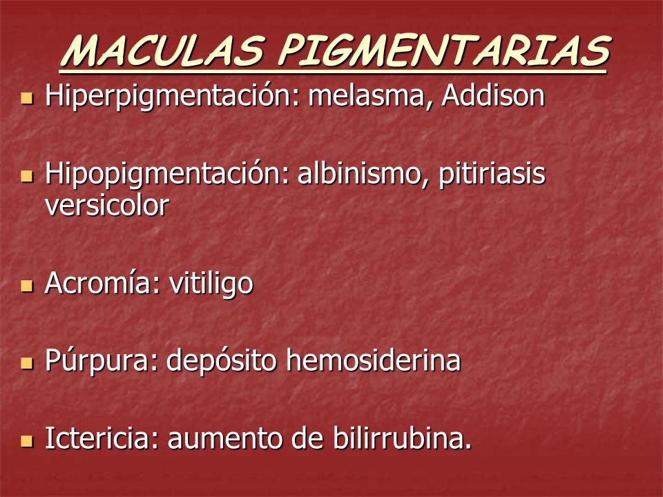 MACULAS HEMATICAS ISQUEMIA (tinte blanco de los tegumentos) ISQUEMIA (tinte blanco de los tegumentos) GENERALIZADA: anemias, cardiopatías, neoplasias.