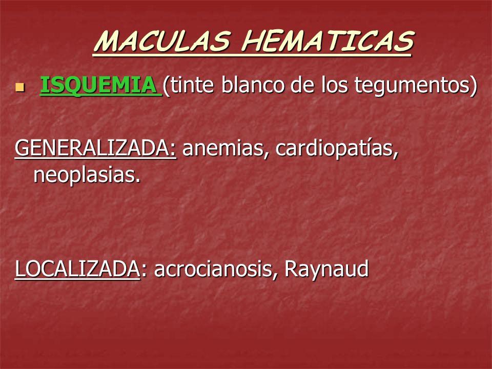 MACULAS HEMATICAS ERITEMA (mácula rojiza por congestión vascular que DESAPARECE a la vitropresión) ERITEMA (mácula rojiza por congestión vascular que DESAPARECE a la vitropresión) ACTIVOS: dilatación arterial, rojos, calientes eritema solar, febril, emocional eritema solar, febril, emocional PASIVOS: congestión venosa, violáceos, fríos más persistentes más persistentes cardiopatías, neumopatías, cardiopatías, neumopatías,