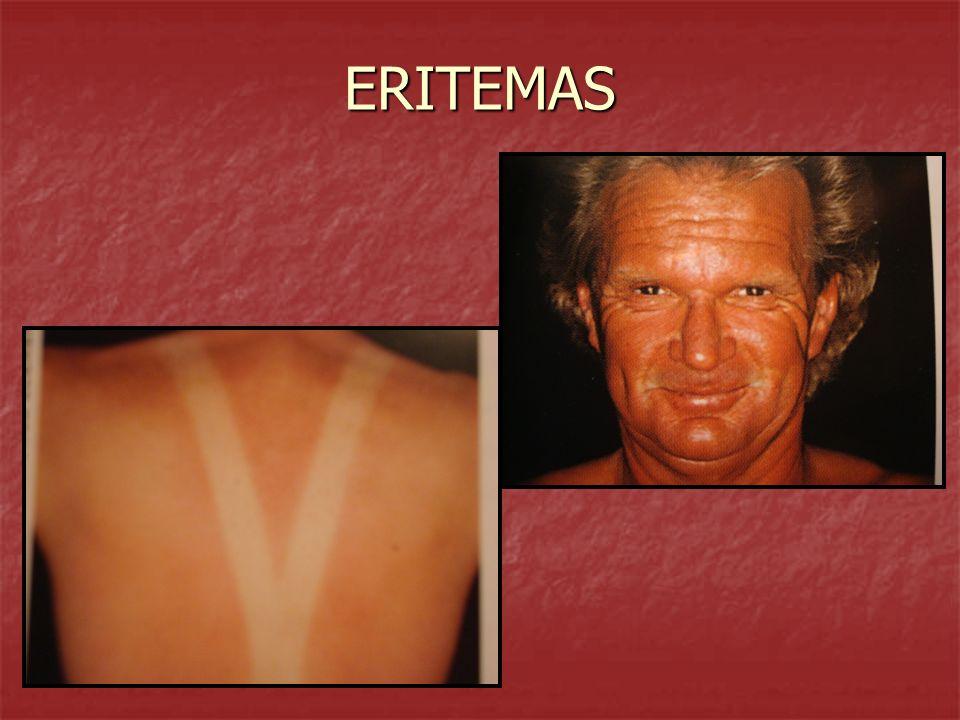 MACULAS HEMATICAS ERITEMA ERITEMAGENERALIZADO: Exantema - Escarlatininiforme: enroj.