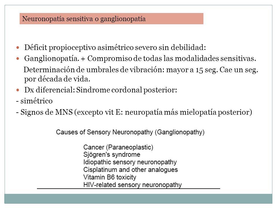 Déficit propioceptivo asimétrico severo sin debilidad: Ganglionopatía. + Compromiso de todas las modalidades sensitivas. Determinación de umbrales de