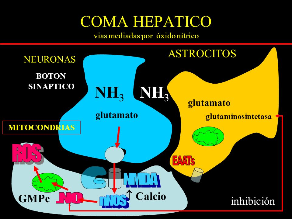 COMA HEPATICO vias mediadas por óxido nítrico ASTROCITOS BOTON SINAPTICO NH 3 MITOCONDRIAS NEURONAS glutamato Calcio glutamato glutaminosintetasa inhibición GMPc