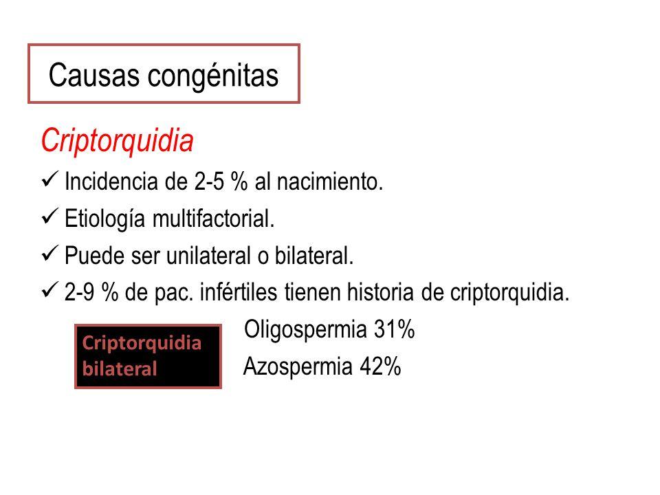 Causas congénitas Criptorquidia Incidencia de 2-5 % al nacimiento. Etiología multifactorial. Puede ser unilateral o bilateral. 2-9 % de pac. infértile