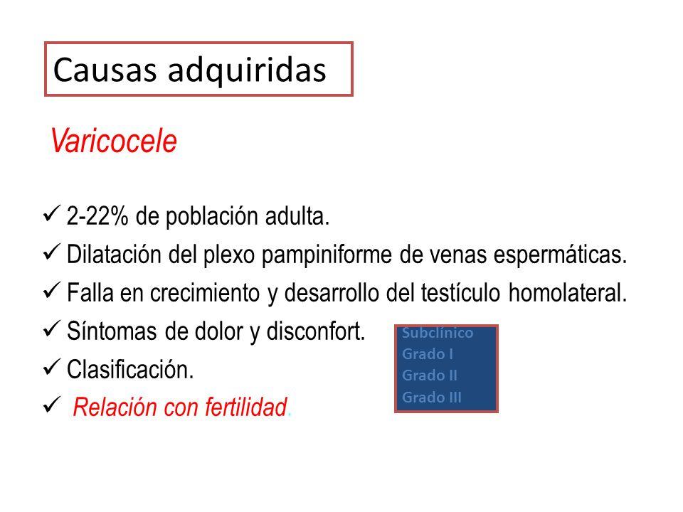 Varicocele 2-22% de población adulta. Dilatación del plexo pampiniforme de venas espermáticas. Falla en crecimiento y desarrollo del testículo homolat