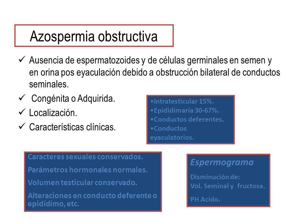 Azospermia obstructiva Ausencia de espermatozoides y de células germinales en semen y en orina pos eyaculación debido a obstrucción bilateral de conductos seminales.