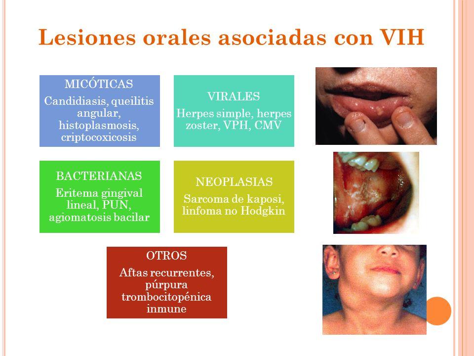 Lesiones orales asociadas con VIH MICÓTICAS Candidiasis, queilitis angular, histoplasmosis, criptocoxicosis VIRALES Herpes simple, herpes zoster, VPH,