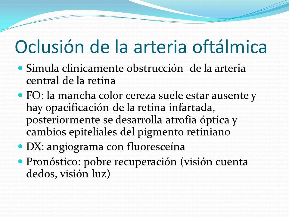 Oclusión de la arteria oftálmica Simula clinicamente obstrucción de la arteria central de la retina FO: la mancha color cereza suele estar ausente y h