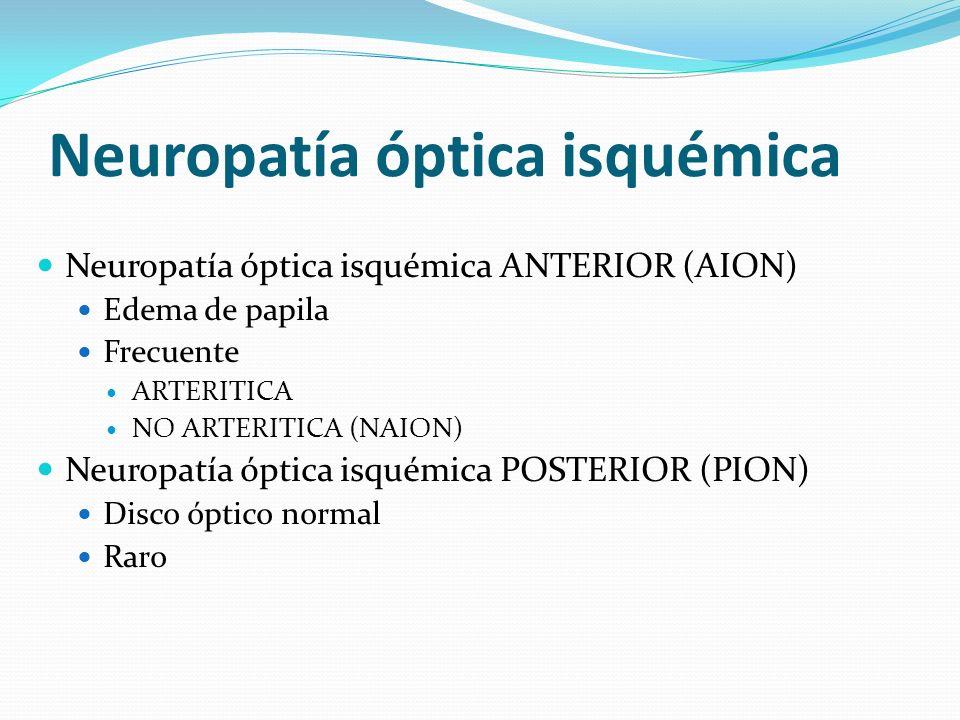 Neuropatía óptica isquémica Neuropatía óptica isquémica ANTERIOR (AION) Edema de papila Frecuente ARTERITICA NO ARTERITICA (NAION) Neuropatía óptica i