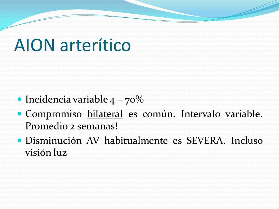 AION arterítico Incidencia variable 4 – 70% Compromiso bilateral es común. Intervalo variable. Promedio 2 semanas! Disminución AV habitualmente es SEV