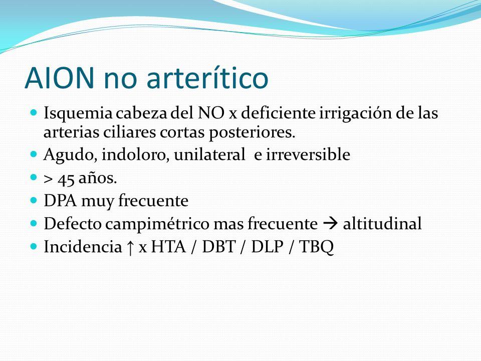 AION no arterítico Isquemia cabeza del NO x deficiente irrigación de las arterias ciliares cortas posteriores. Agudo, indoloro, unilateral e irreversi