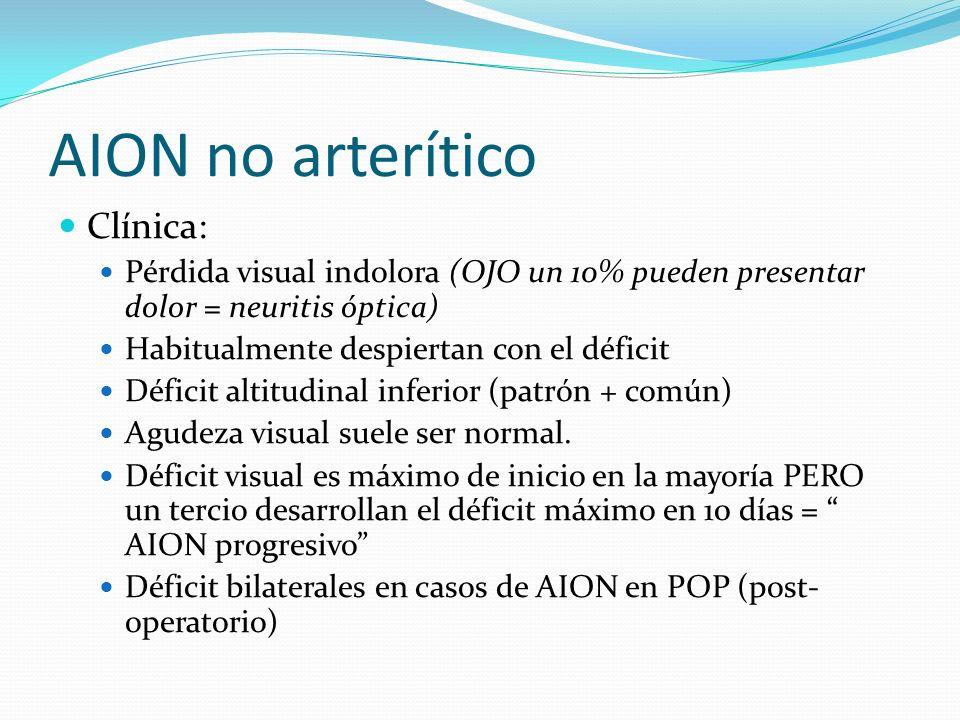 AION no arterítico Clínica: Pérdida visual indolora (OJO un 10% pueden presentar dolor = neuritis óptica) Habitualmente despiertan con el déficit Défi