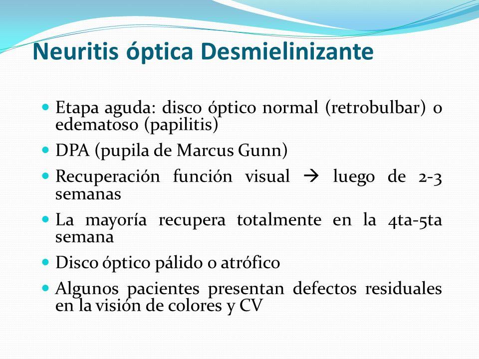Neuritis óptica Desmielinizante Etapa aguda: disco óptico normal (retrobulbar) o edematoso (papilitis) DPA (pupila de Marcus Gunn) Recuperación funció