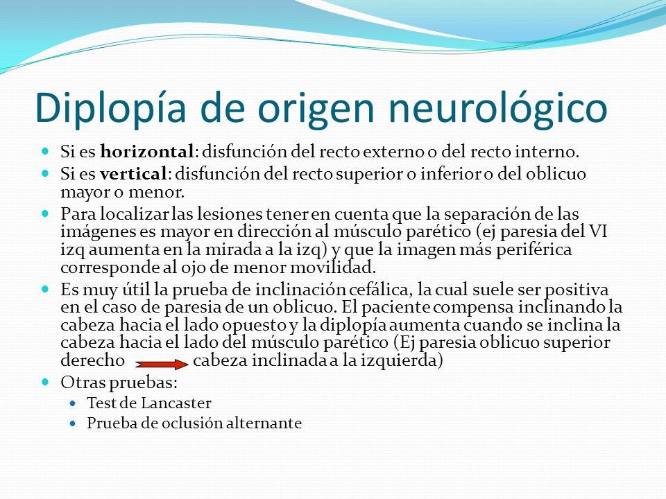 Diplopía de origen neurológico Si es horizontal: disfunción del recto externo o del recto interno. Si es vertical: disfunción del recto superior o inf