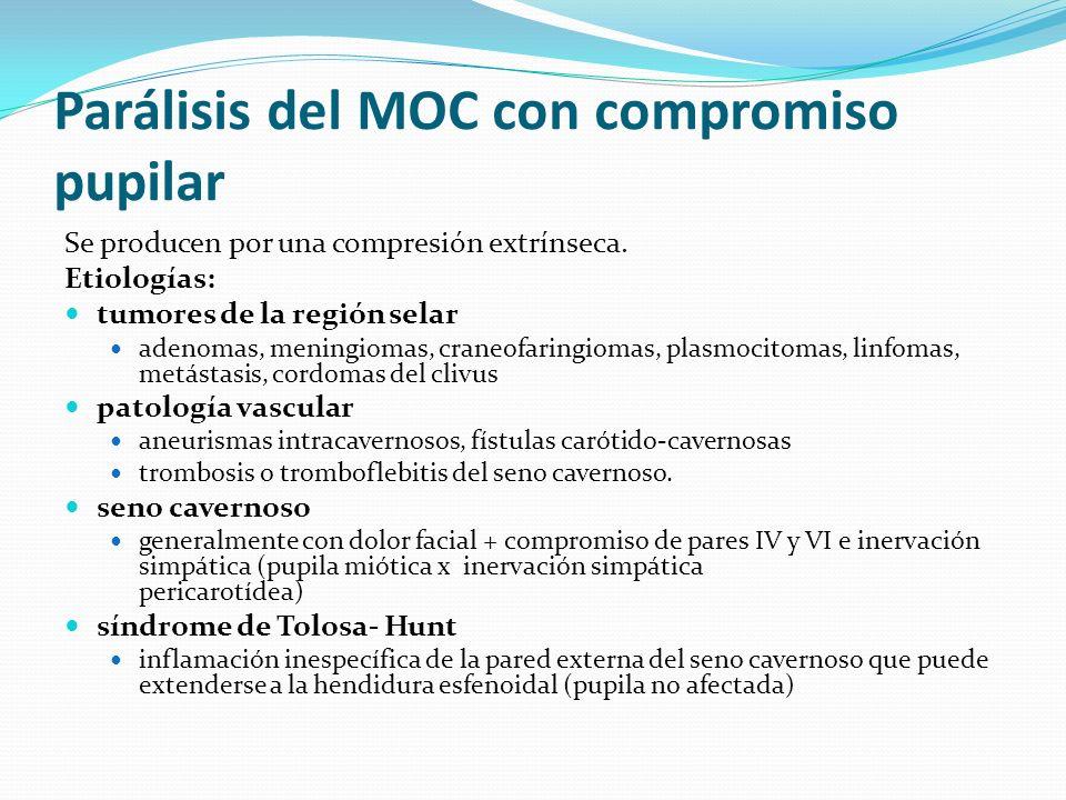 Parálisis del MOC con compromiso pupilar Se producen por una compresión extrínseca. Etiologías: tumores de la región selar adenomas, meningiomas, cran