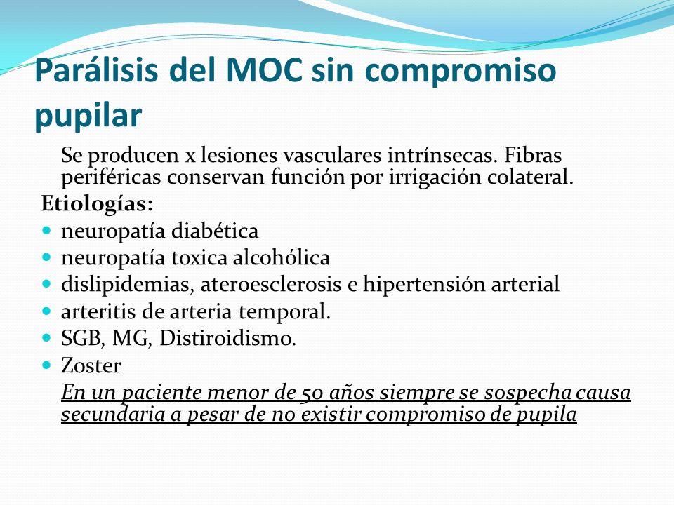 Parálisis del MOC sin compromiso pupilar Se producen x lesiones vasculares intrínsecas. Fibras periféricas conservan función por irrigación colateral.
