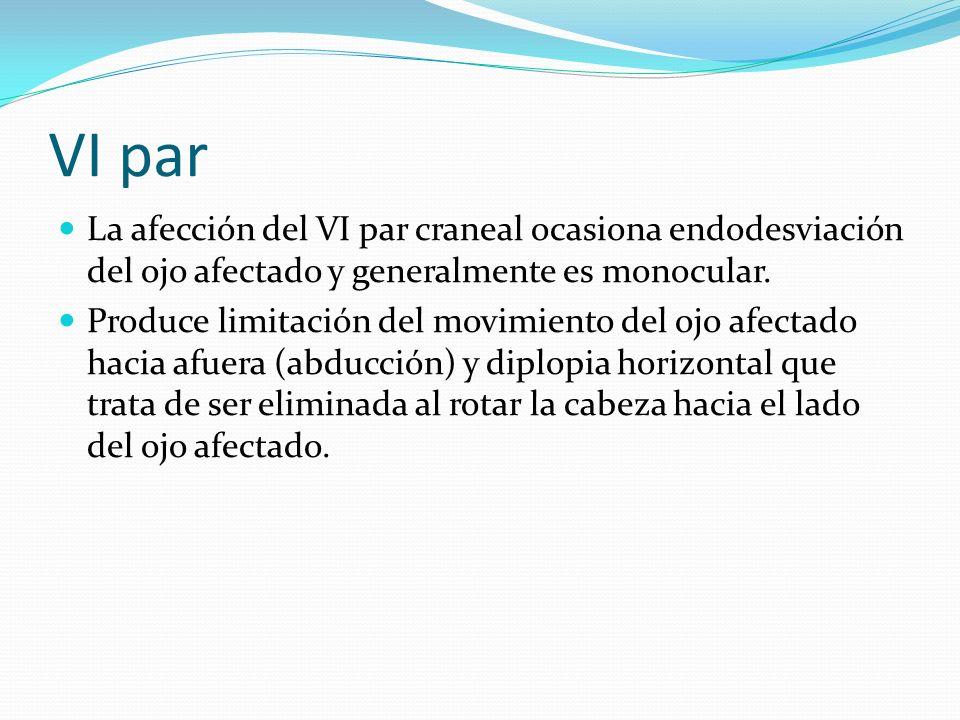 VI par La afección del VI par craneal ocasiona endodesviación del ojo afectado y generalmente es monocular. Produce limitación del movimiento del ojo