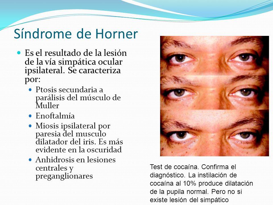 Síndrome de Horner Es el resultado de la lesión de la vía simpática ocular ipsilateral. Se caracteriza por: Ptosis secundaria a parálisis del músculo
