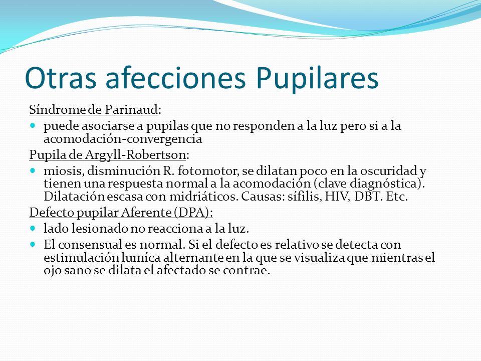 Otras afecciones Pupilares Síndrome de Parinaud: puede asociarse a pupilas que no responden a la luz pero si a la acomodación-convergencia Pupila de A