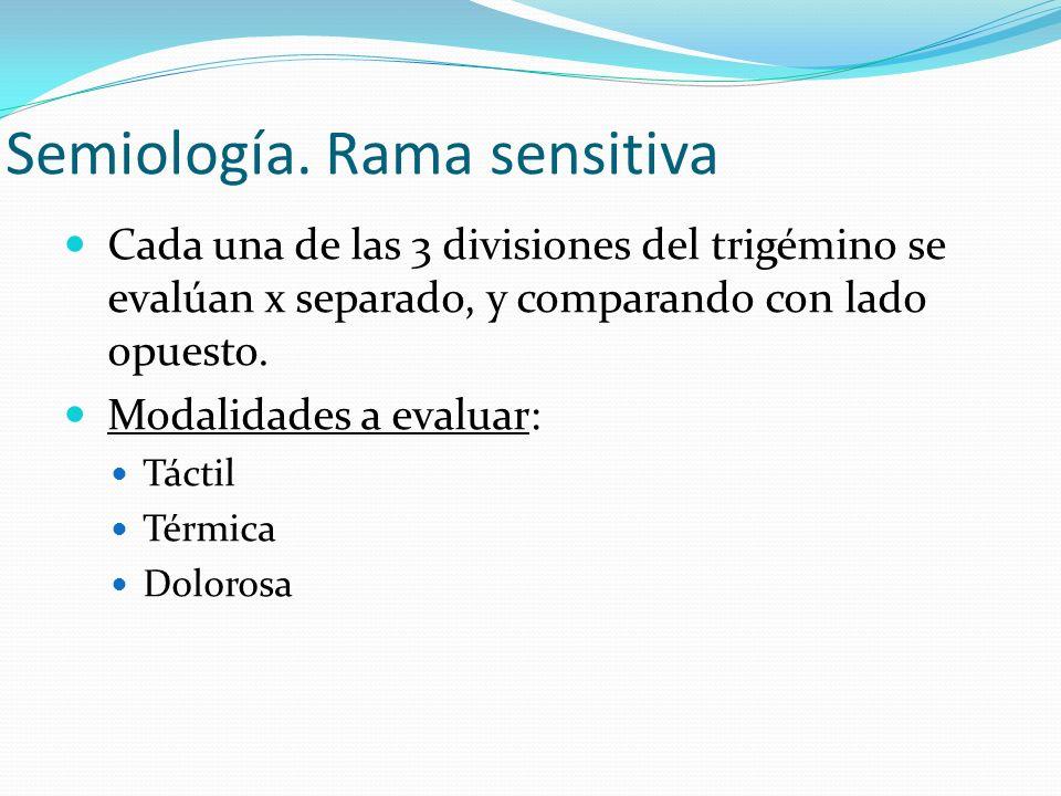 Semiología. Rama sensitiva Cada una de las 3 divisiones del trigémino se evalúan x separado, y comparando con lado opuesto. Modalidades a evaluar: Tác
