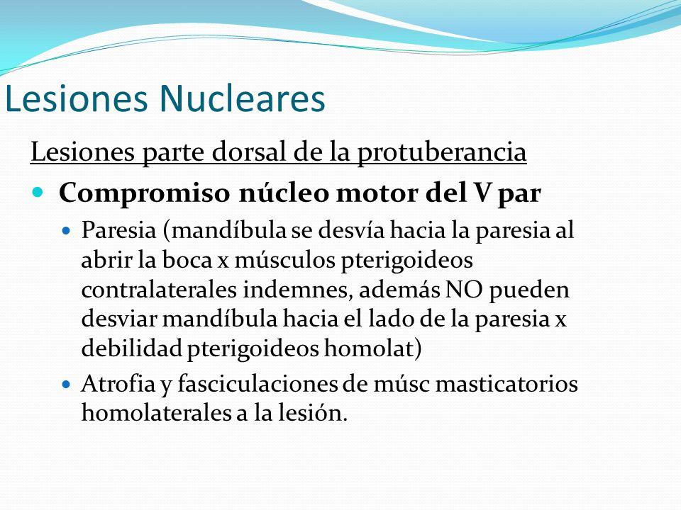 Lesiones Nucleares Lesiones parte dorsal de la protuberancia Compromiso núcleo motor del V par Paresia (mandíbula se desvía hacia la paresia al abrir