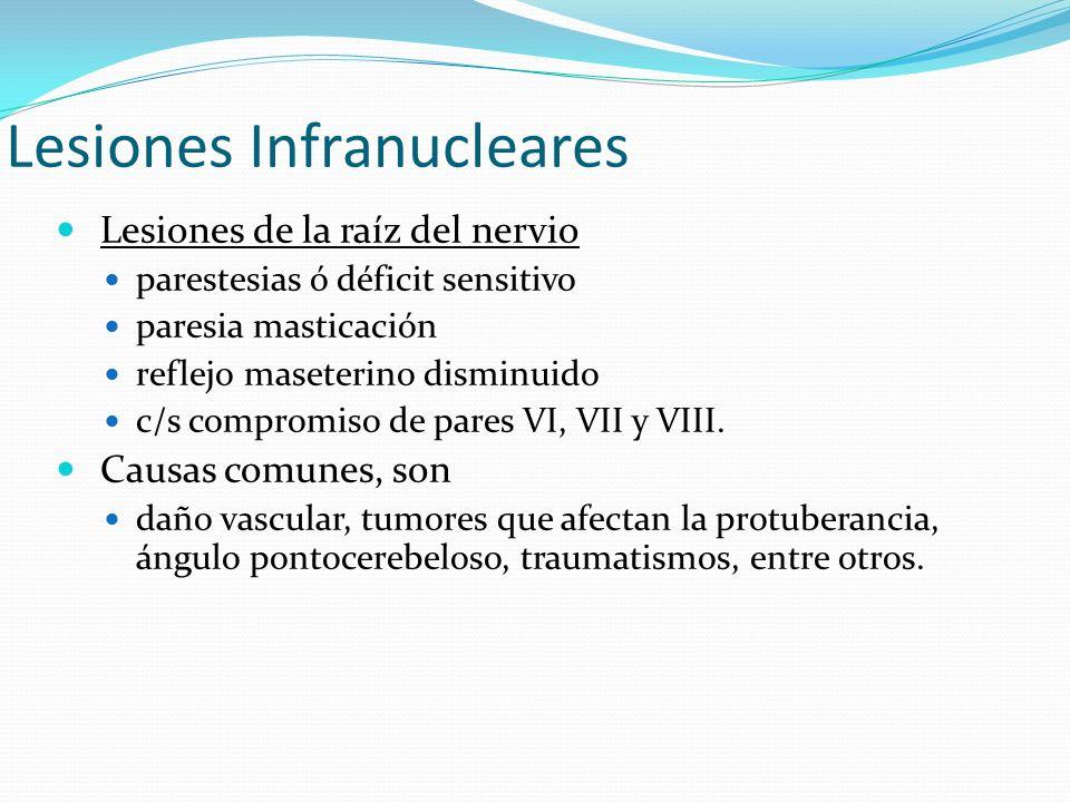 Lesiones Infranucleares Lesiones de la raíz del nervio parestesias ó déficit sensitivo paresia masticación reflejo maseterino disminuido c/s compromis