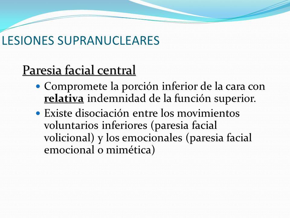 LESIONES SUPRANUCLEARES Paresia facial central Compromete la porción inferior de la cara con relativa indemnidad de la función superior. Existe disoci