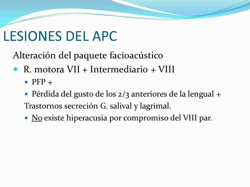 LESIONES DEL APC Alteración del paquete facioacústico R. motora VII + Intermediario + VIII PFP + Pérdida del gusto de los 2/3 anteriores de la lengual