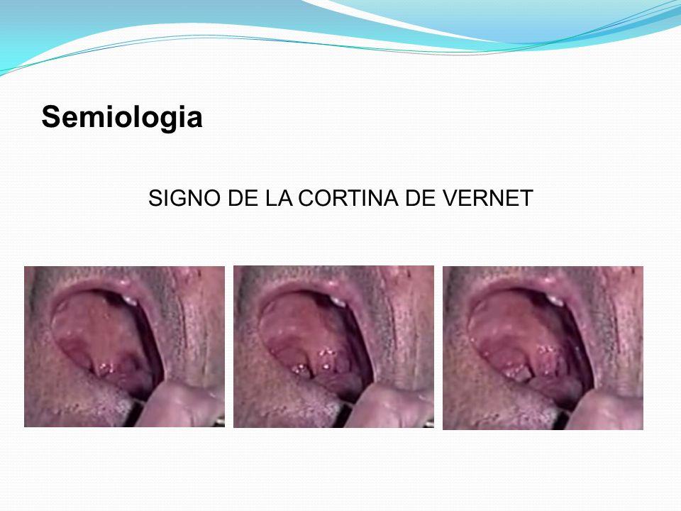 SIGNO DE LA CORTINA DE VERNET Semiologia