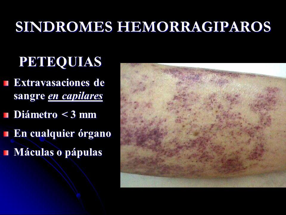 SINDROMES HEMORRAGIPAROS PETEQUIAS Extravasaciones de sangre en capilares Diámetro < 3 mm En cualquier órgano Máculas o pápulas