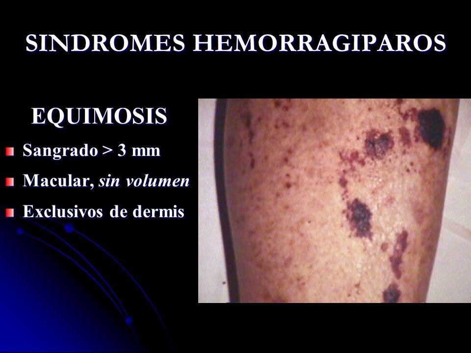 SINDROMES HEMORRAGIPAROS EQUIMOSIS Sangrado > 3 mm Macular, sin volumen Exclusivos de dermis