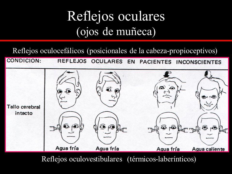 Reflejos oculares (ojos de muñeca) Reflejos oculocefálicos (posicionales de la cabeza-propioceptivos) Reflejos oculovestibulares (térmicos-laberíntico