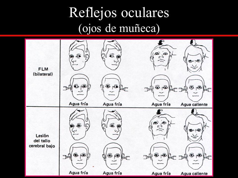 Reflejos oculares (ojos de muñeca)