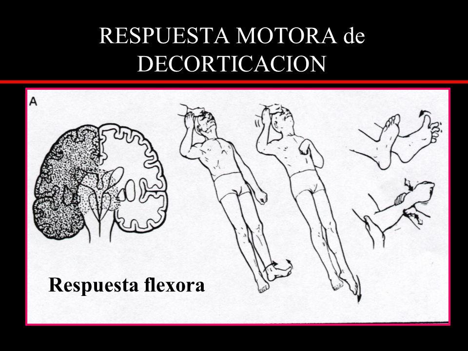 RESPUESTA MOTORA de DECORTICACION Respuesta flexora
