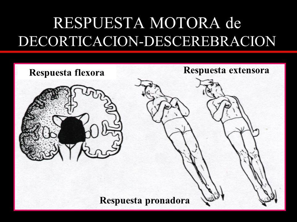 RESPUESTA MOTORA de DECORTICACION-DESCEREBRACION Respuesta flexora Respuesta extensora Respuesta pronadora
