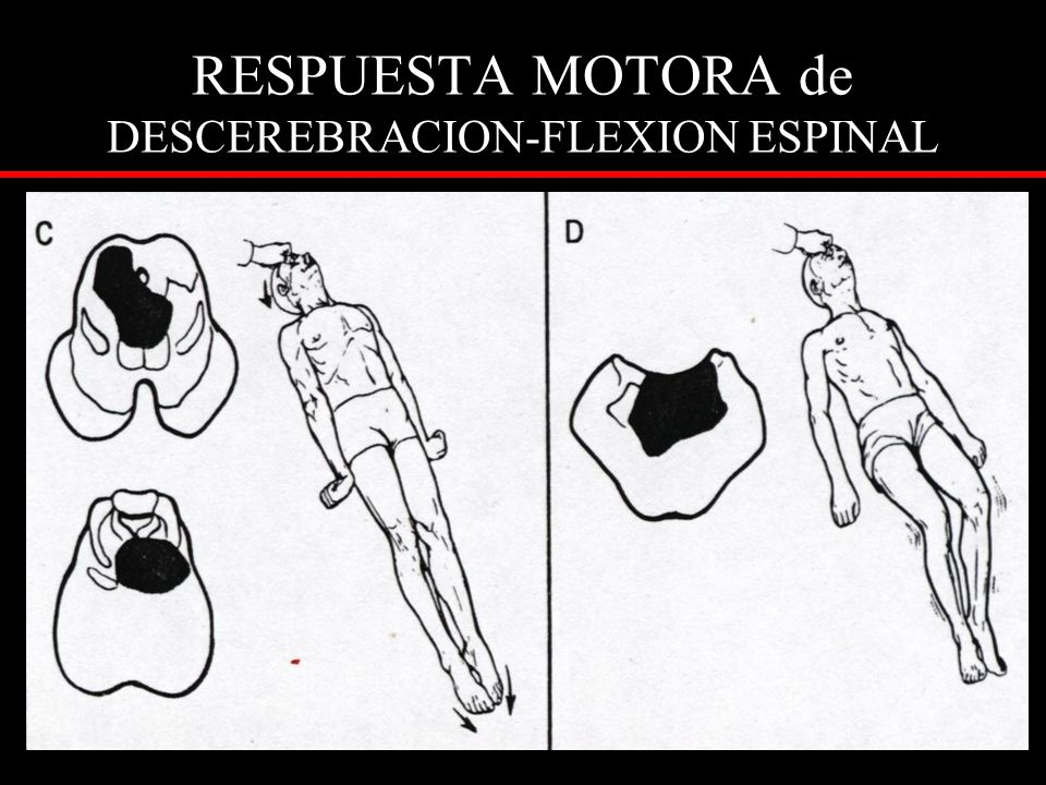 RESPUESTA MOTORA de DESCEREBRACION-FLEXION ESPINAL