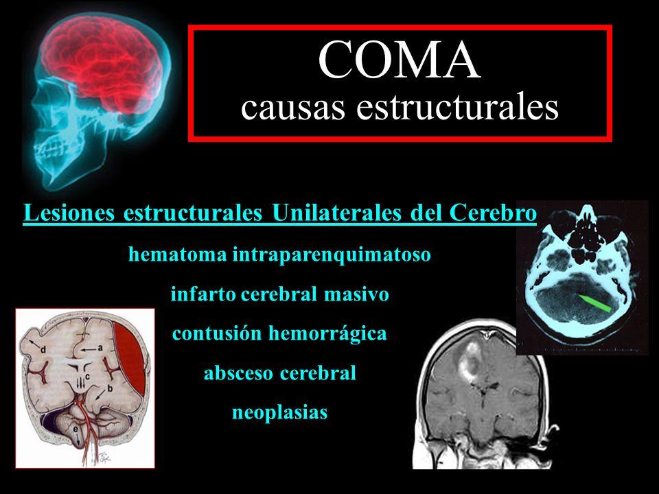 COMA causas estructurales Lesiones estructurales Unilaterales del Cerebro hematoma intraparenquimatoso infarto cerebral masivo contusión hemorrágica a
