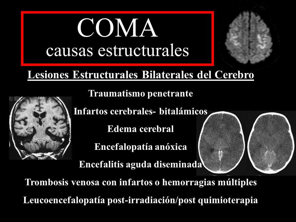 COMA causas estructurales Lesiones Estructurales Bilaterales del Cerebro Traumatismo penetrante Infartos cerebrales- bitalámicos Edema cerebral Encefa