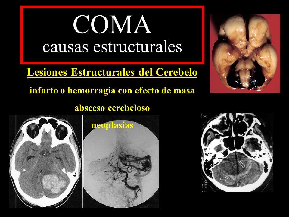 COMA causas estructurales Lesiones Estructurales del Cerebelo infarto o hemorragia con efecto de masa absceso cerebeloso neoplasias
