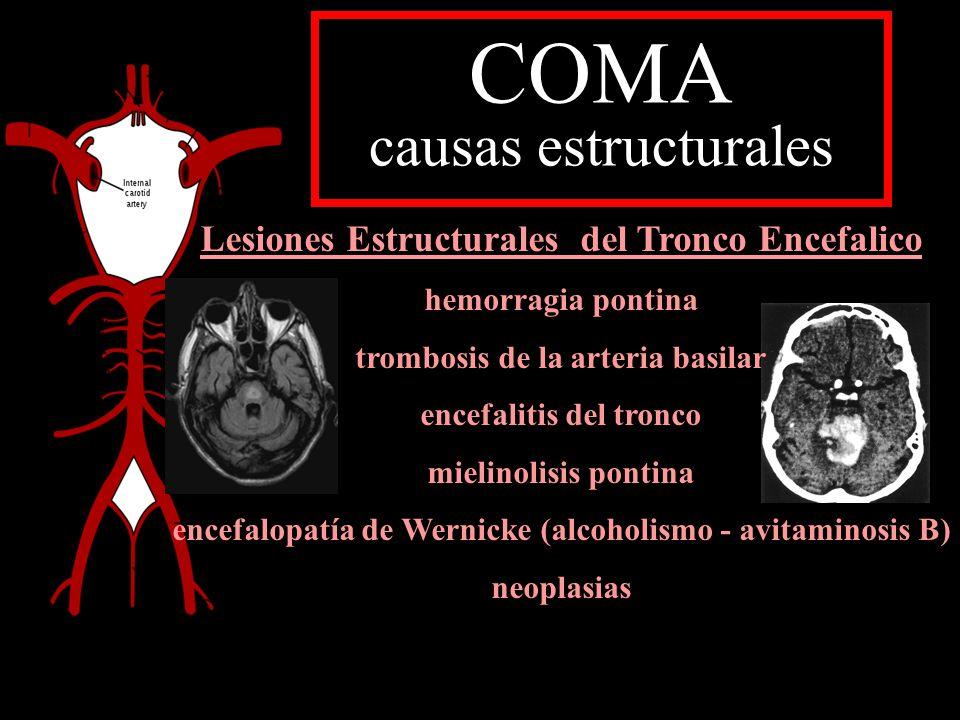 COMA causas estructurales Lesiones Estructurales del Tronco Encefalico hemorragia pontina trombosis de la arteria basilar encefalitis del tronco mieli