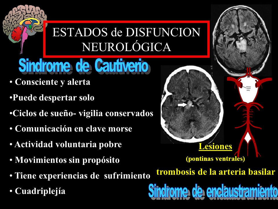 ESTADOS de DISFUNCION NEUROLÓGICA Consciente y alerta Puede despertar solo Ciclos de sueño- vigilia conservados Comunicación en clave morse Actividad