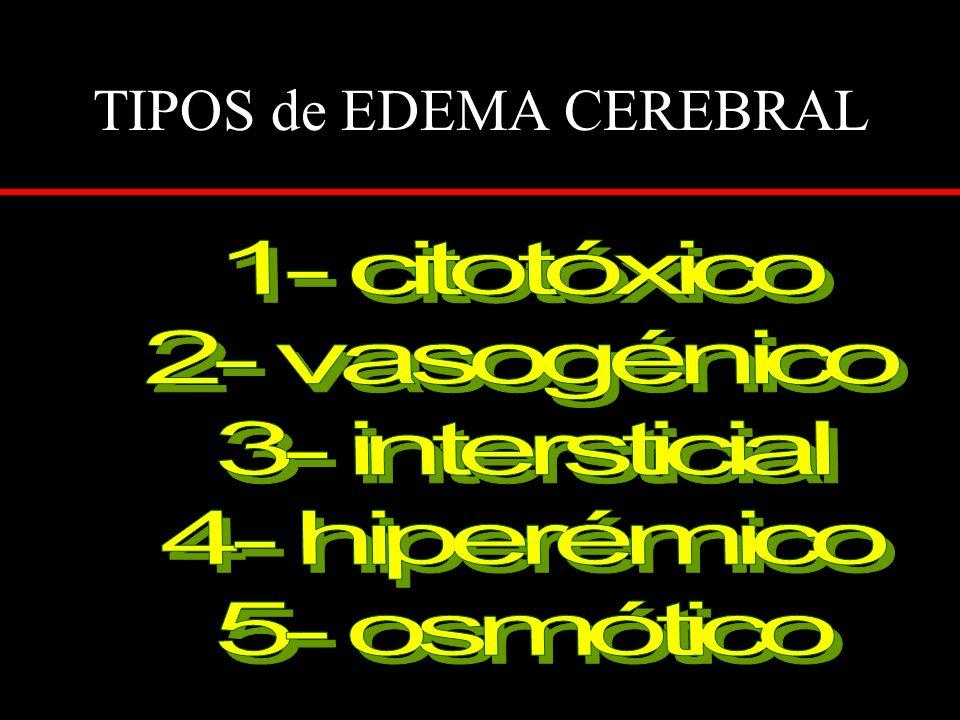 TIPOS de EDEMA CEREBRAL